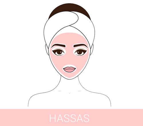 HASSAS